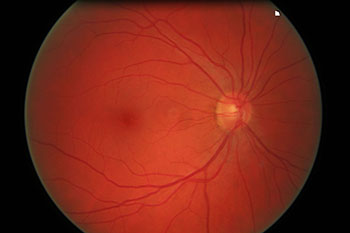 Digital retinal photography